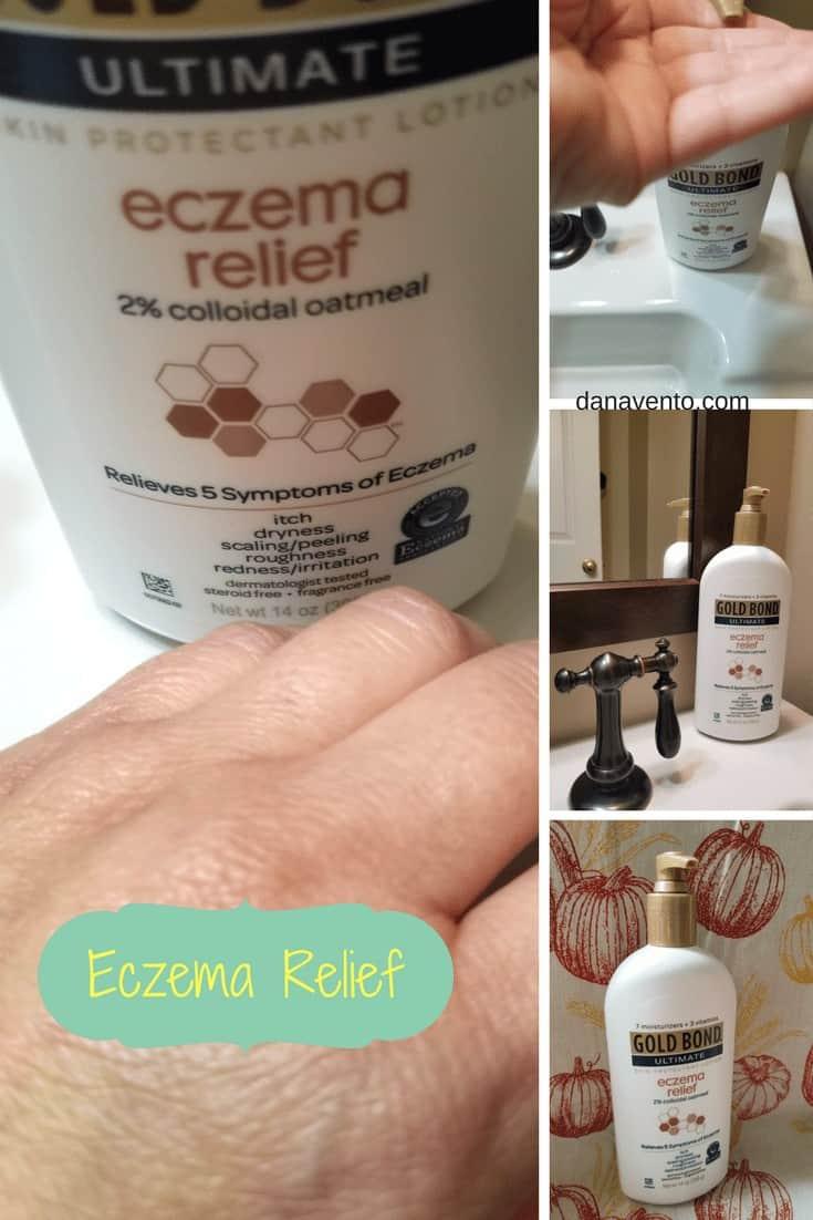 eczema relief pinterest