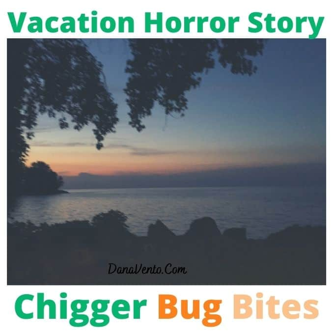 Vacation Horror Story Chigger Bug Bites